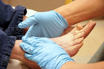 diabetic foot treatment in Pasadena, Baytown, League City, Pearland, Houston, TX