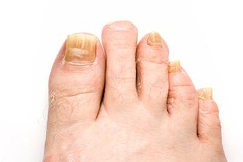 Fungus Toenails Treatment   Foot Doctor